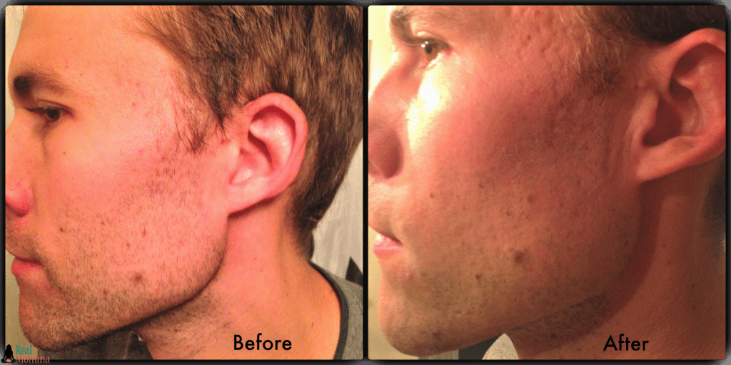 Before and After Philips Shaver Series