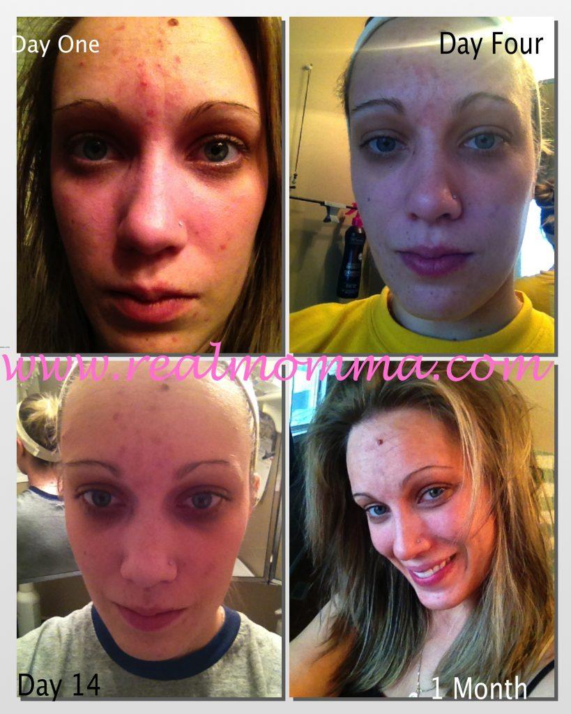 Dermagix Results